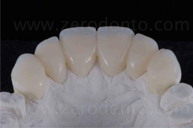 provvisori in caso di erosione dentaria