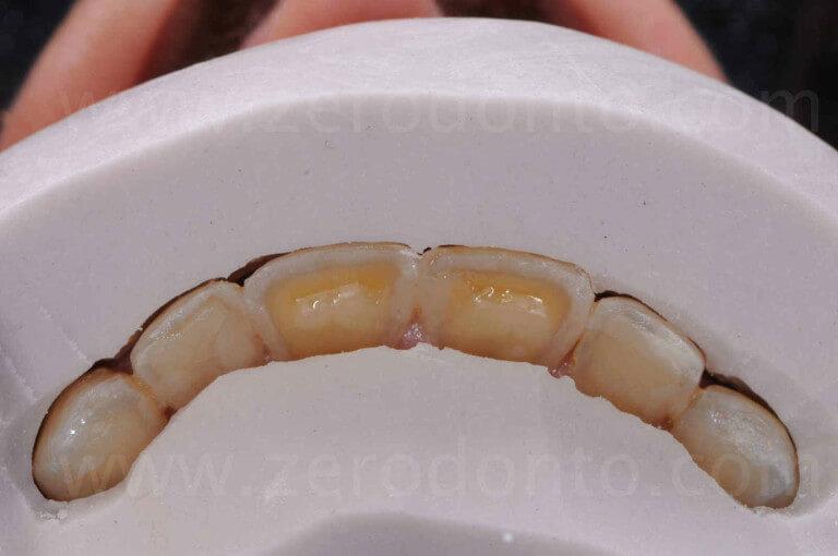 mascherine in silicone per preparazione corone in disselciato di litio