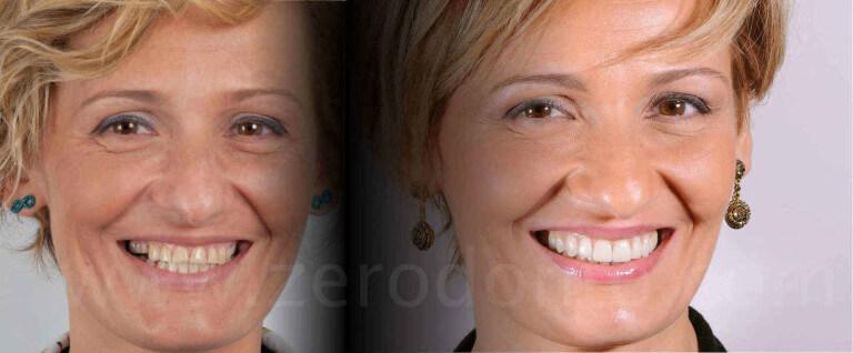 prima e dopo caso di erosione dentaria mauro fradeani