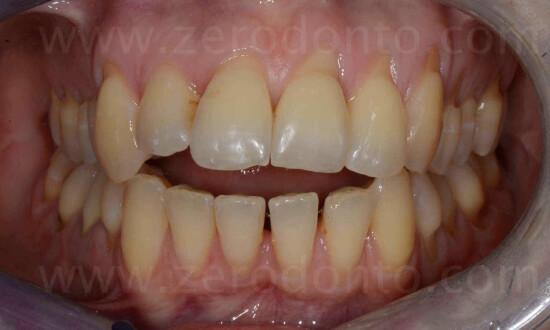 1 morso aperto ortodonzia invisibile