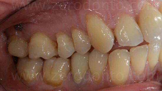 10 intrusione molari