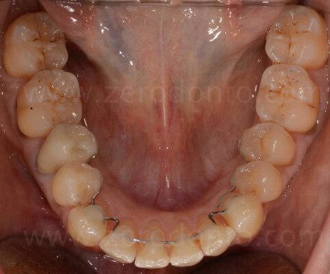 ortodonzia invisibile mariniello
