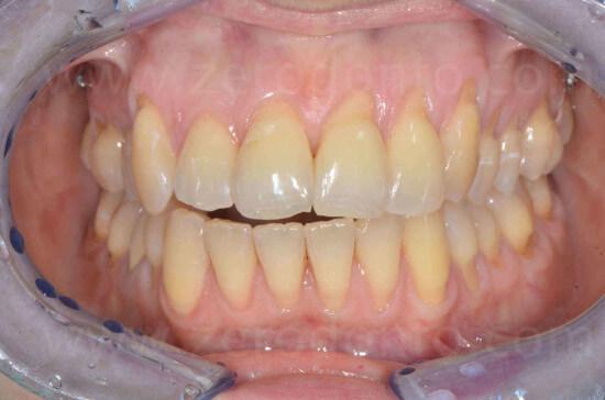 17 allineamento dentario