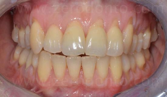 18 livellamento dentario