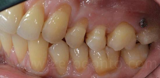 22 denti sani