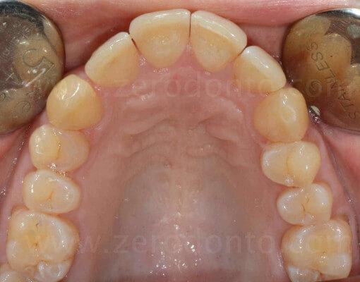 5 stripping ortodontico