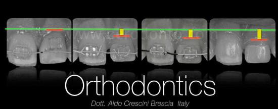 CERUTTI zerodonto 2014 finale.010