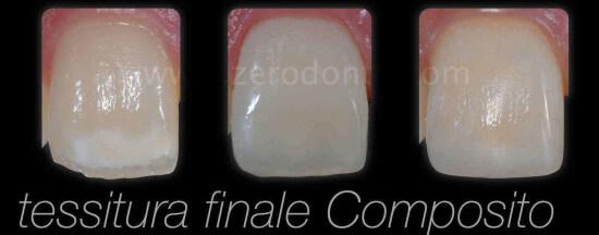 CERUTTI zerodonto 2014 finale.019