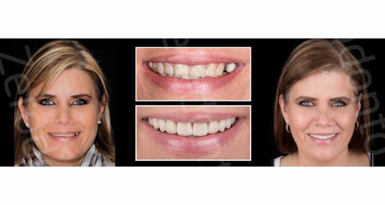 Approccio interdisciplinare al Digital Smile Design