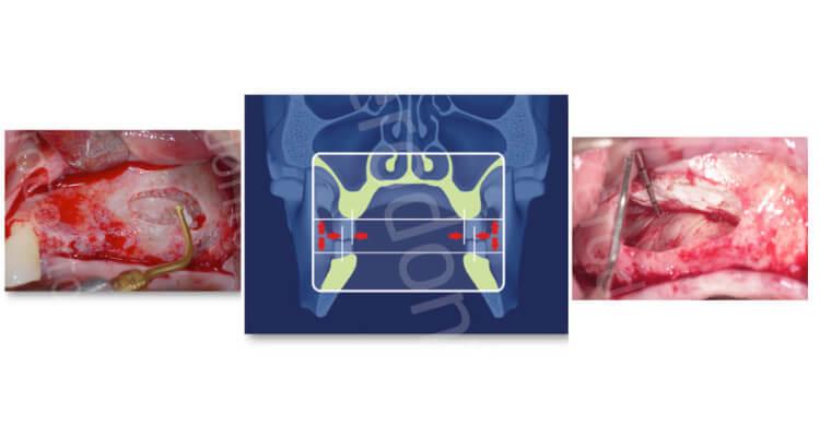 La chirurgia del seno mascellare: elevazione con approccio crestale. Lo stato dell'arte.