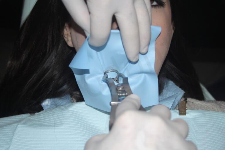 Fig. 27. B. Mentre la mano sinistra dell'odontoiatra regge il margine superiore della diga, la sua mano destra posiziona l'uncino attorno al dente.