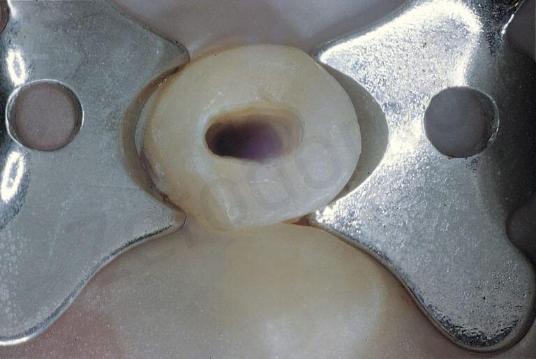 F. L'uncino è stato posizionato al di sopra dell'attacco ortodontico e del filo e pertanto la diga chiude perfettamente.