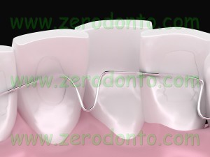 lingual orthodontic without phonetic problems