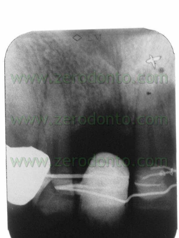 X-ray orthodontic