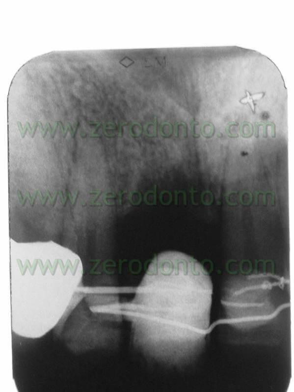 X-ray orthodontic