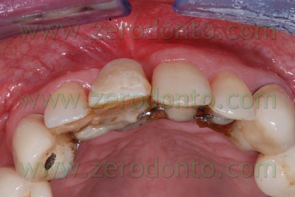 Buccal implant