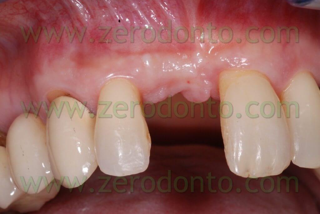 Implant incisor