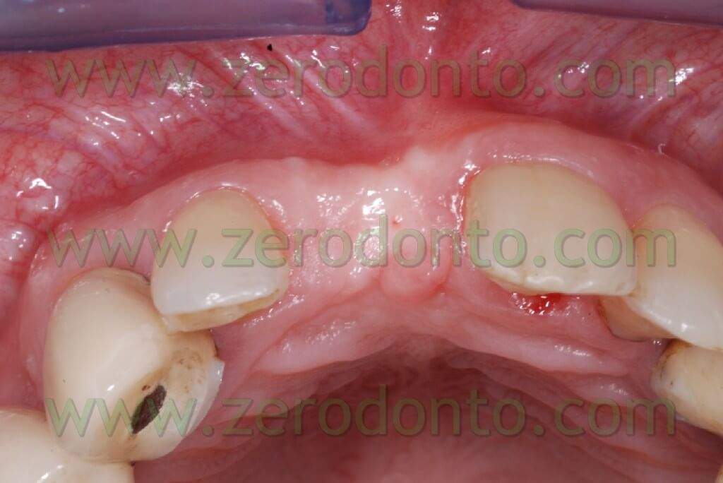 Central implant