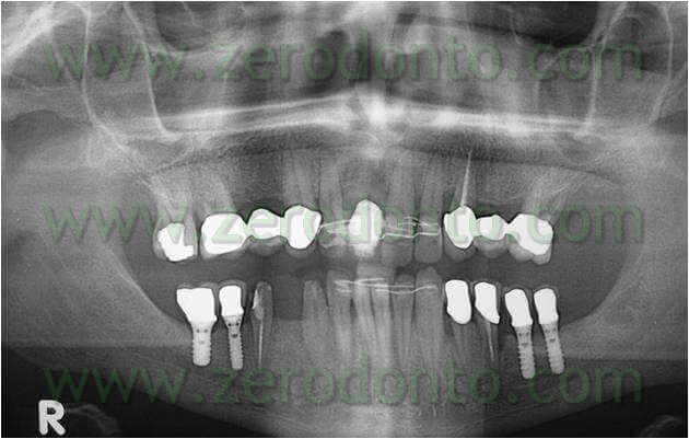 Mandibular implant