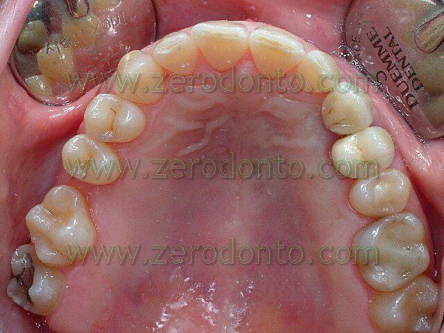 dental rotation