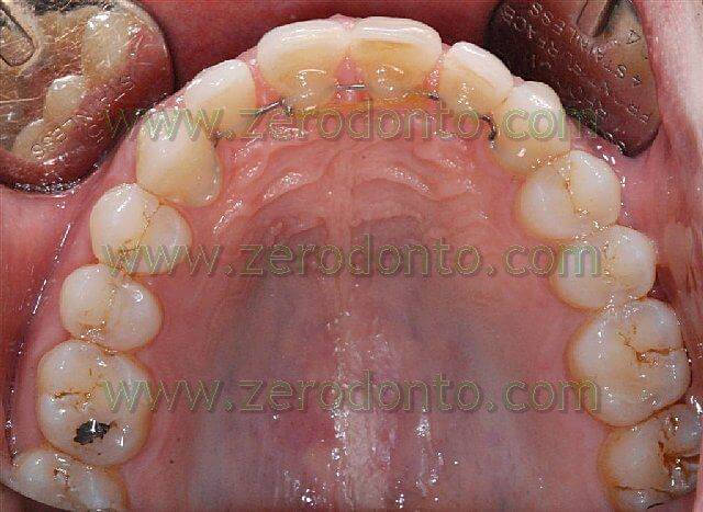 inter incisal diastema closure
