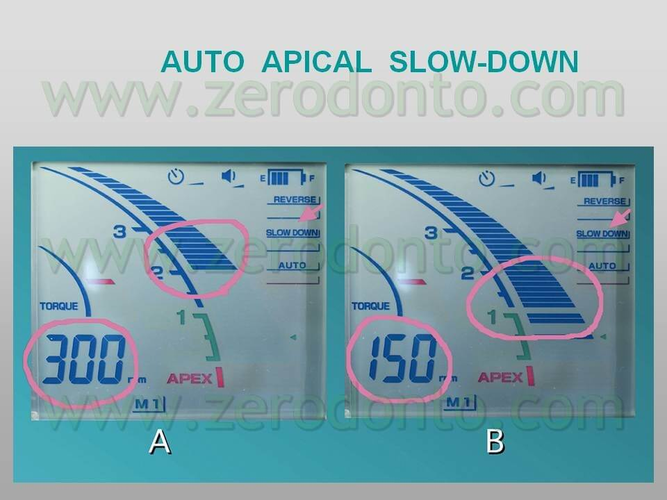 Auto apical slow-down