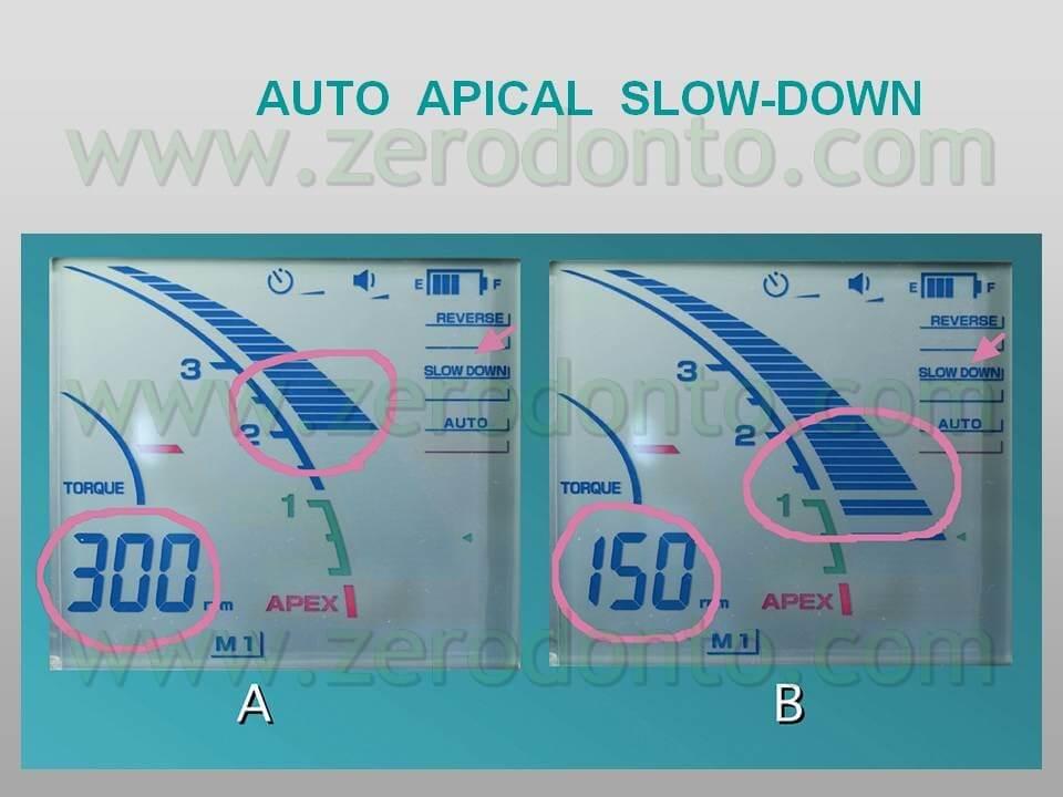 Auto apical slow-down