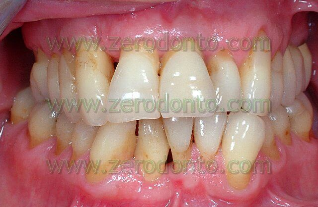Lingual Orthodontics without brackets: Active Retainers