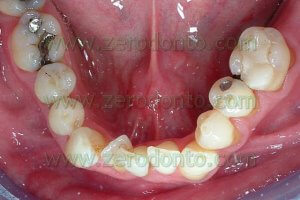 before bracketless fixed lingual orthodontic
