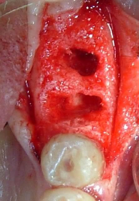 Divaricating suture