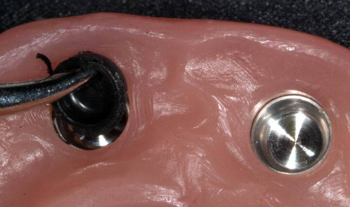 Lower removable prosthesis