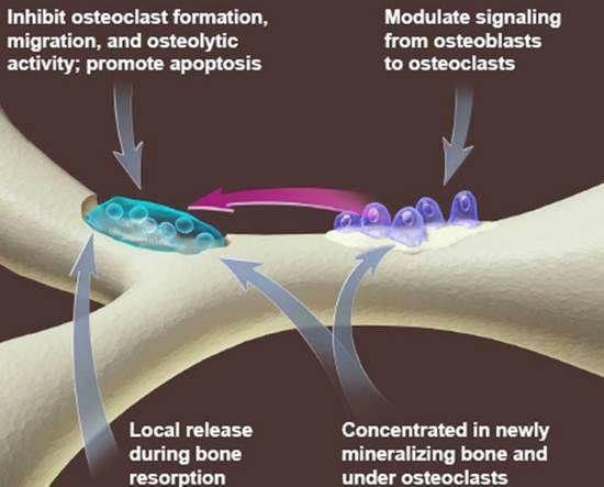 Bisphosphonates in Dentistry