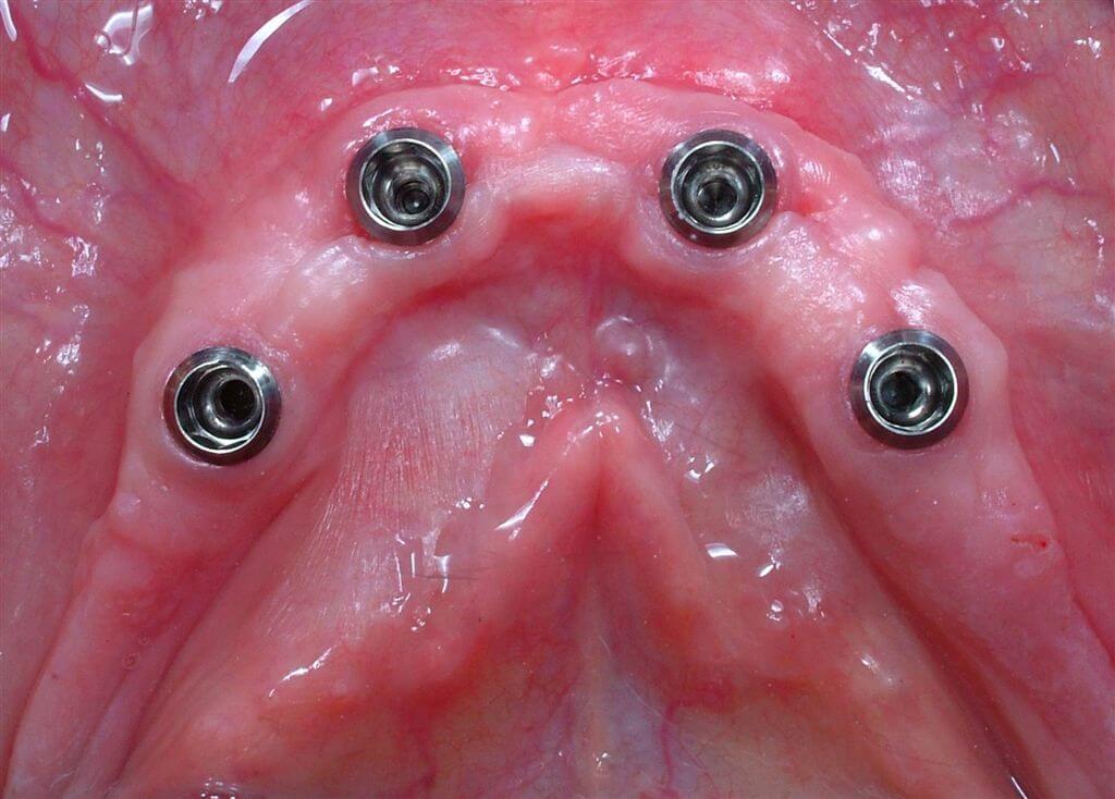 Implant healing