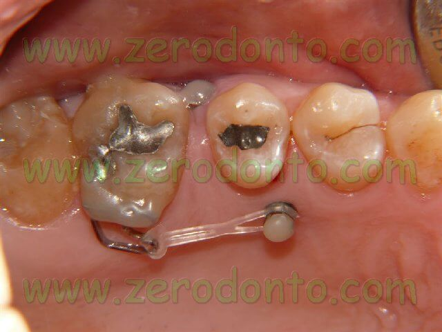 Micro-screws in Orthodontics – clinical problems