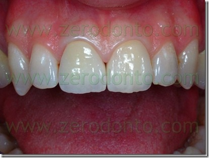 Gold ceramic vs zirconia dental crowns