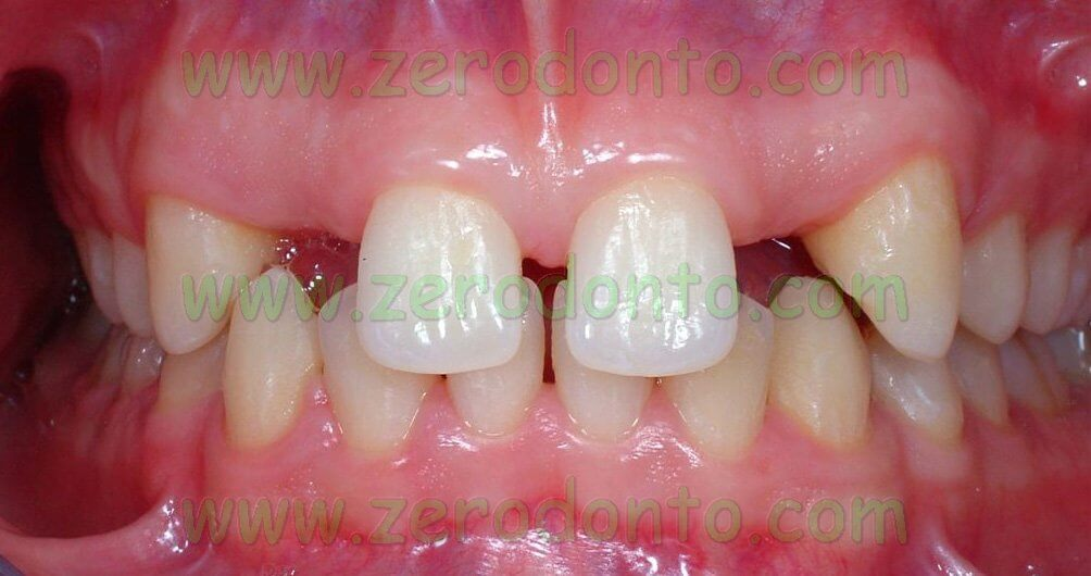 Maxillary lateral incisor agenesis
