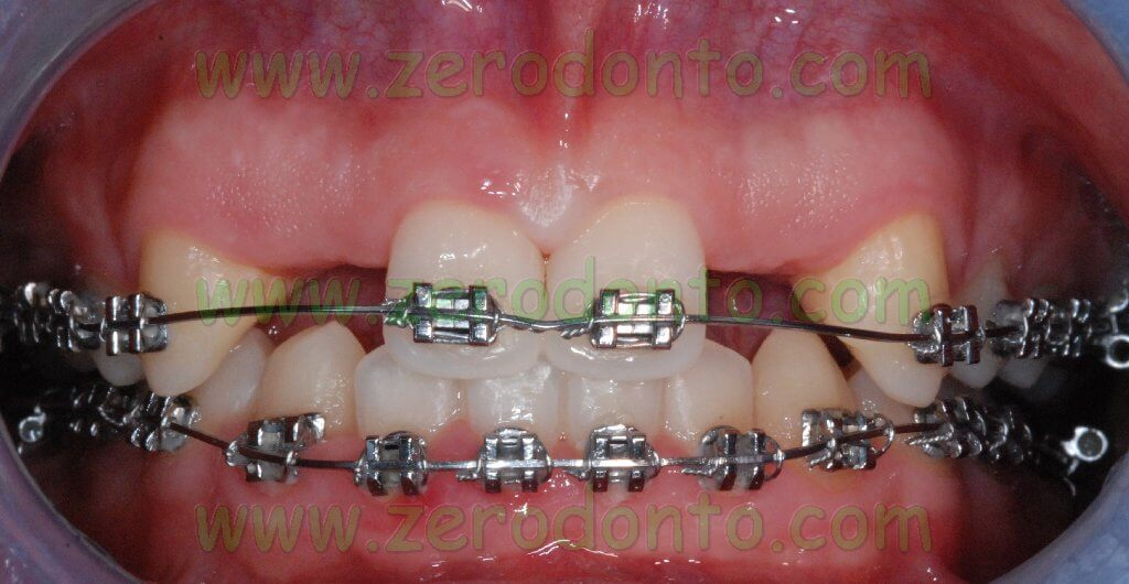 Interincisive diastema closing