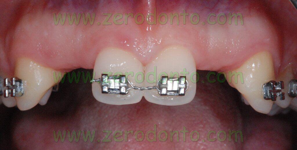 Central incisor alignment