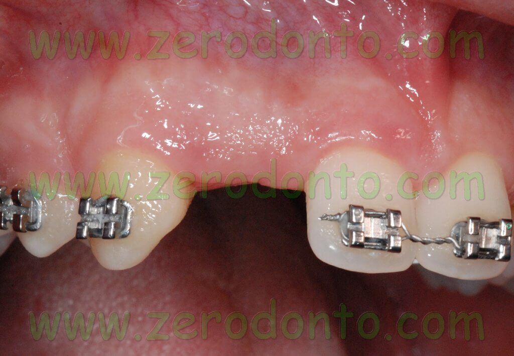 Lateral incisor space opening