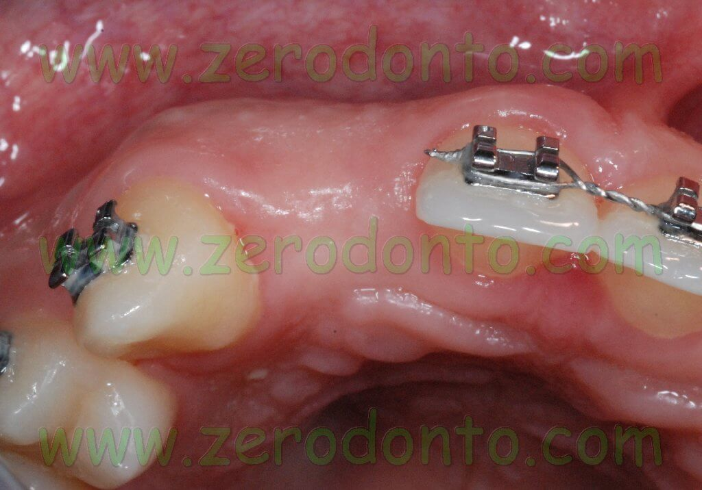 Occlusal view dental lacuna