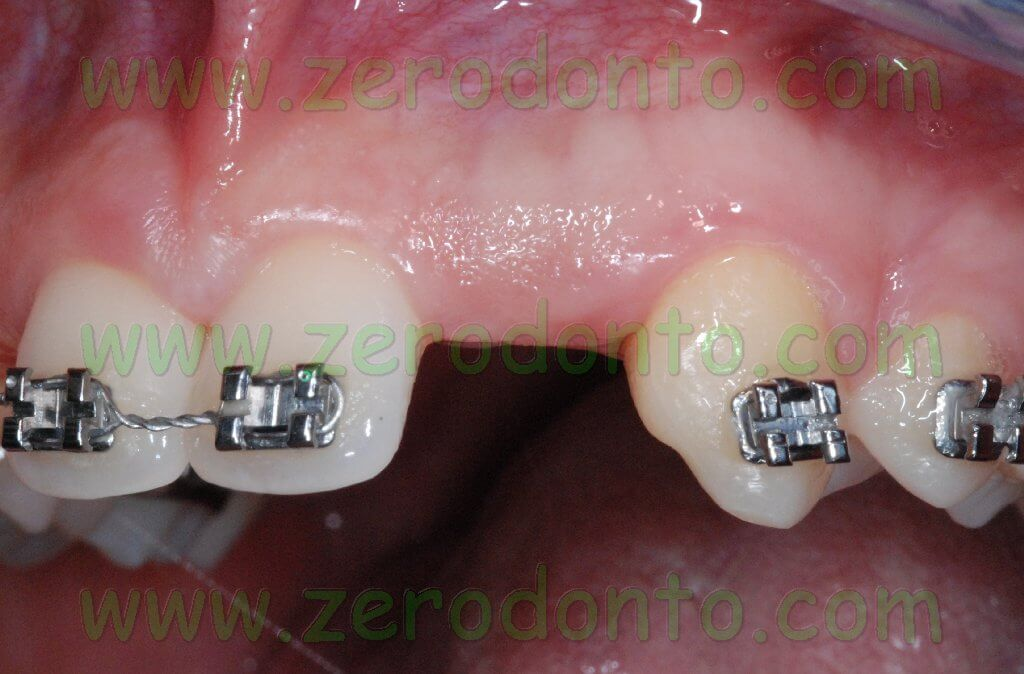 Agenesis implant space