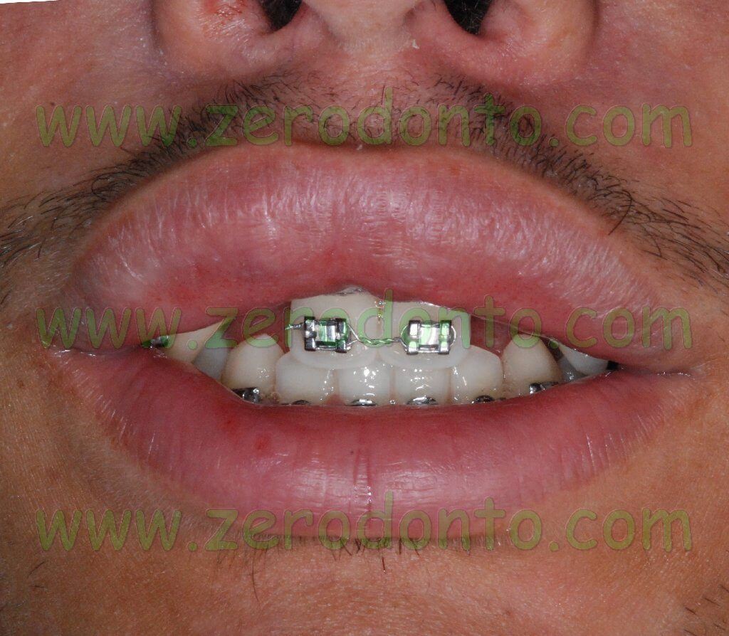 Teeth agenesis esthetic