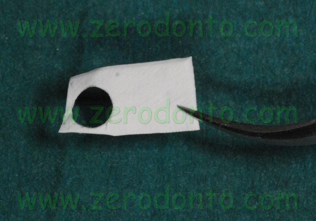 Implant membrane