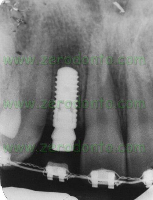 Bone level radiograph