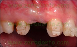 Straumann implant