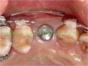 Implant orthodontics