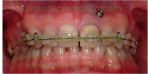 Orthodontic screw