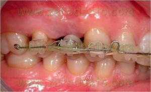 Implant orthodontic