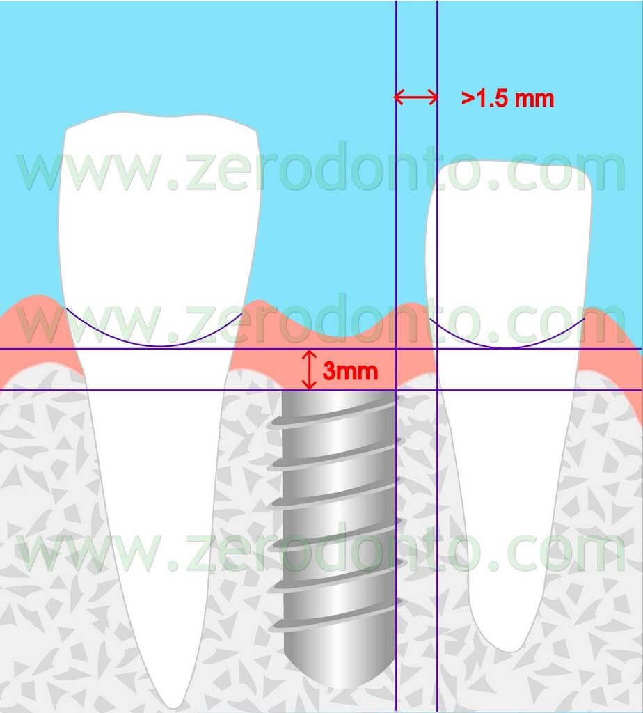 Implant placement esthetic zone