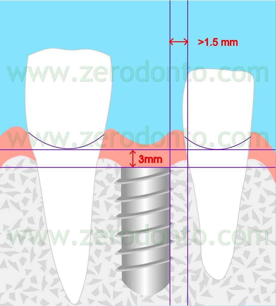 Implant placement esthetic zone